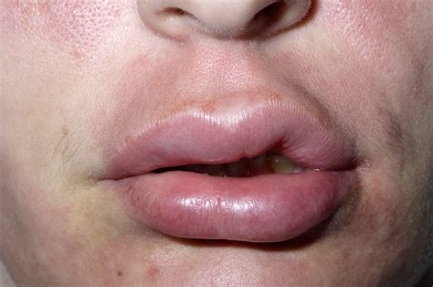 Quick Facts: Angioedema - MSD Manual Consumer Version
